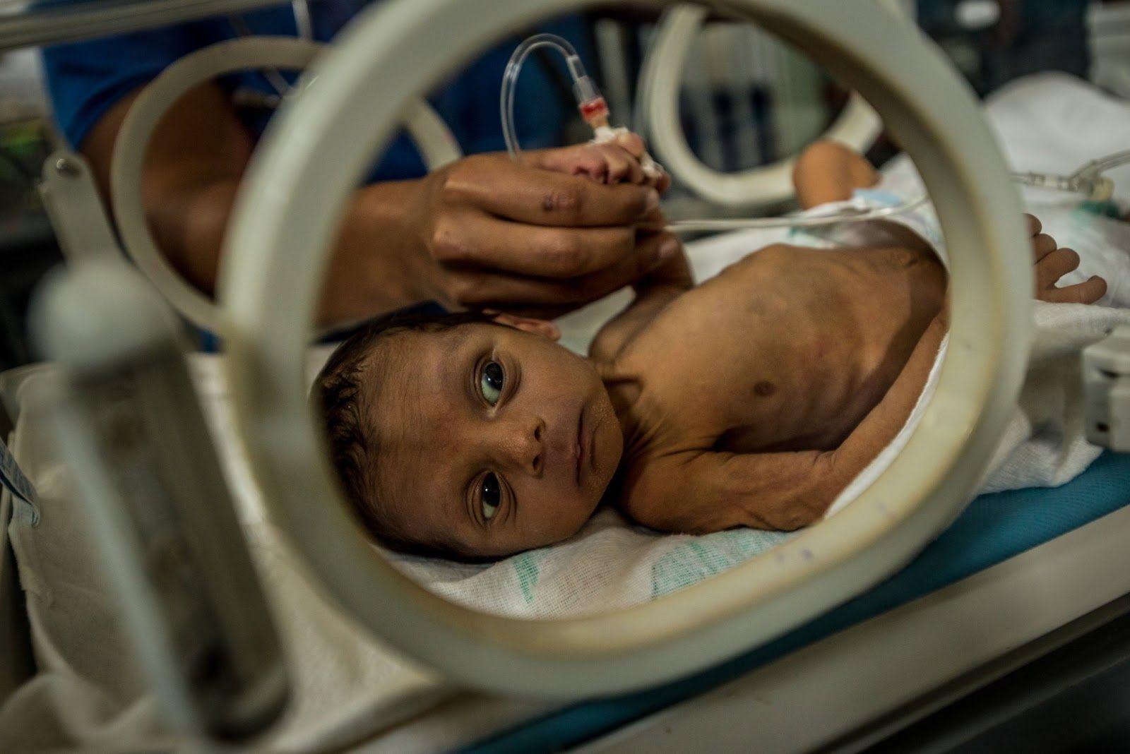 Desnutrición infantil crece 35% en tres meses en Venezuela